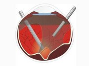 Vitrektomi ameliyatı nedir?