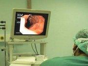 Endoskopi ve kolonoskopide son 10 yılda neler değişti?