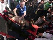 Yaralı Filistinliler