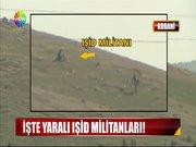 İşte yaralı IŞİD militanları!