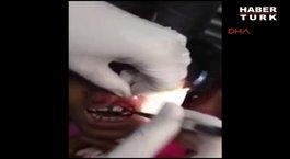 Küçük kızın diş etinden çıkanlara inanamayacaksınız!