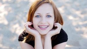 Diş teli nasıl takılır? Takılması ağrılı bir işlem midir?